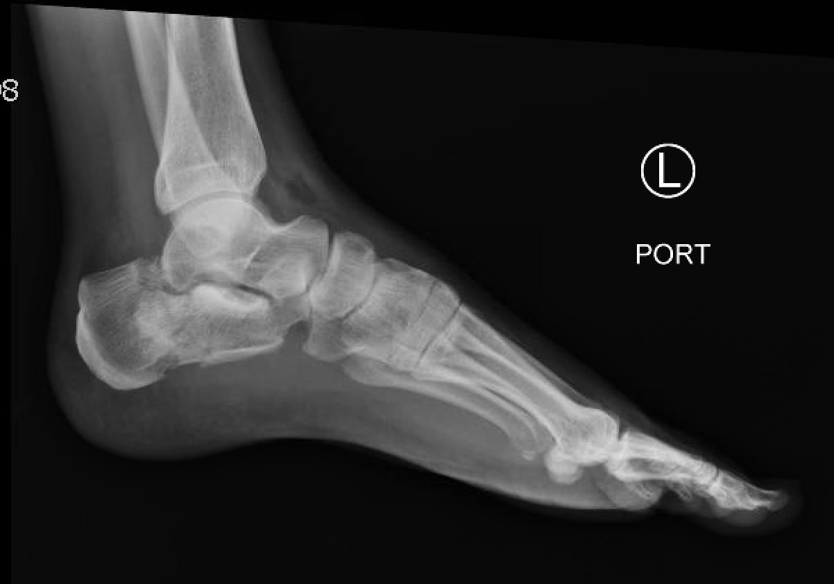 Calcaneal Fractures And Bhlers Angle Jetem