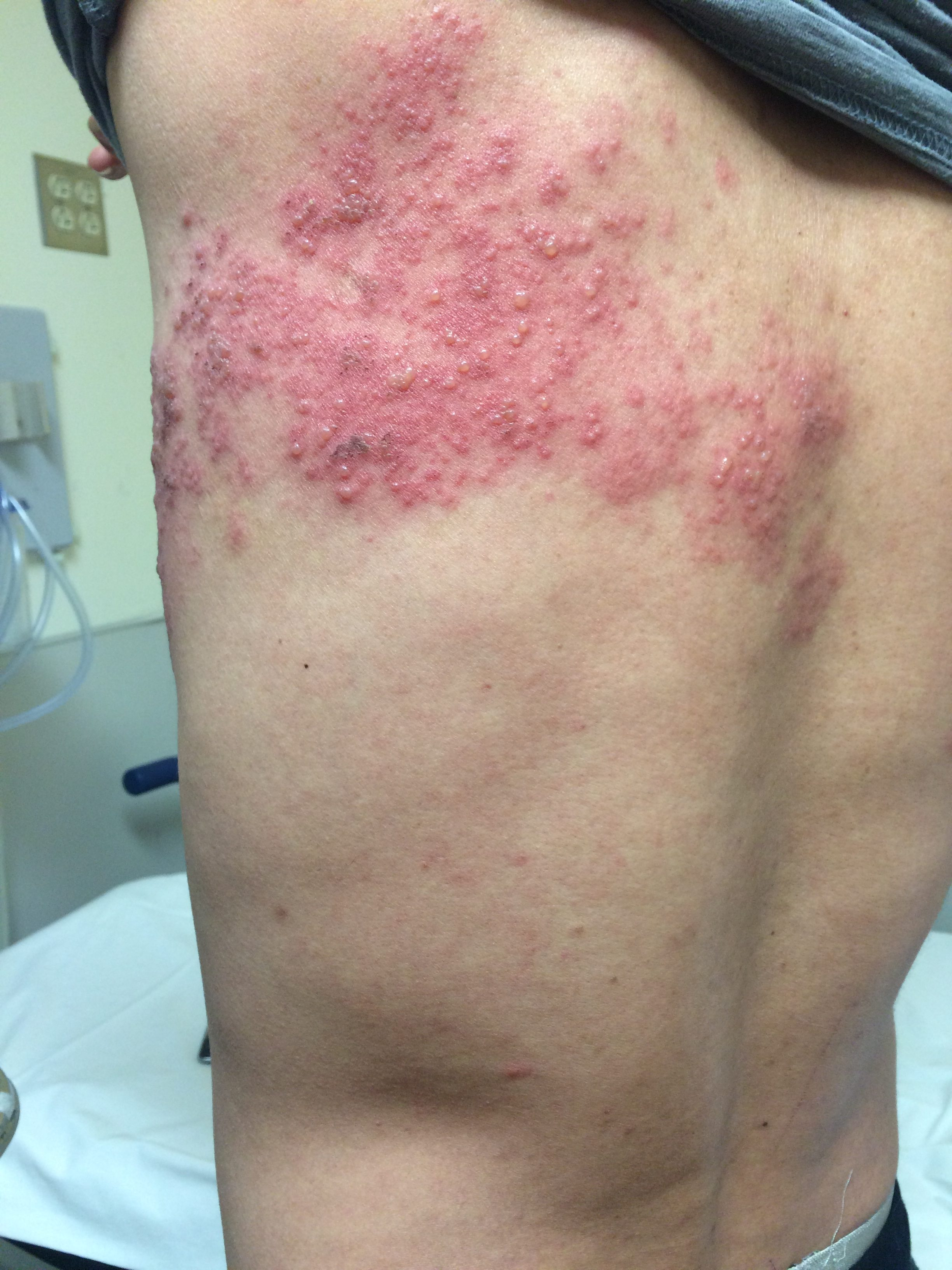 Herpes Zoster Shingles Herpes Zoster Jetem