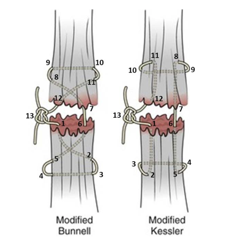 extensor tendon surgery choice image