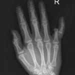 5th Finger Dislocation Xray JETem 2016