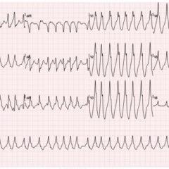WPW EKG 1, initial EKG. JETem 2016