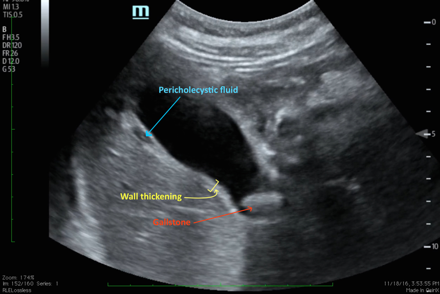 acute cholecystitis case study