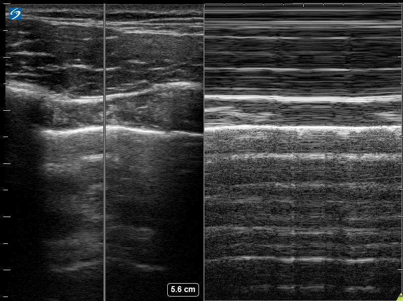 The Role of Chest X-Ray and Bedside Ultrasound in Diagnosing