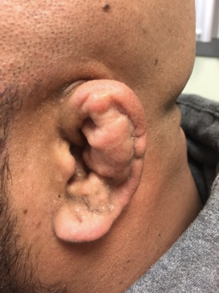 Cauliflower Ear Secondary to a Chronic Auricular Hematoma