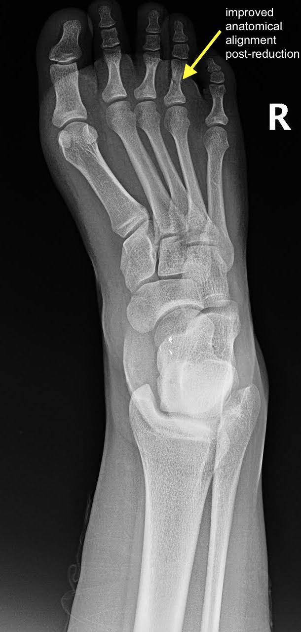 Proximal Phalanx Fracture Of The Foot Xray Postreduction Annotated Jetem 2020 Jetem